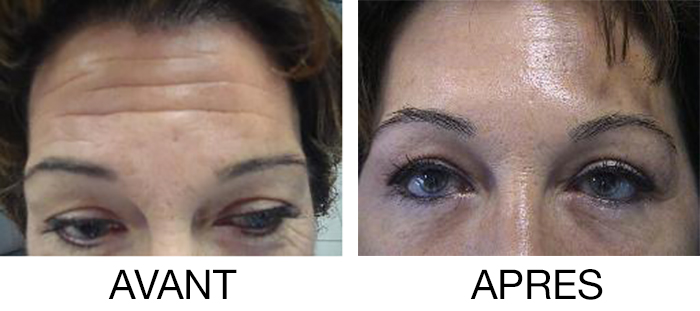 Botox Perpignan